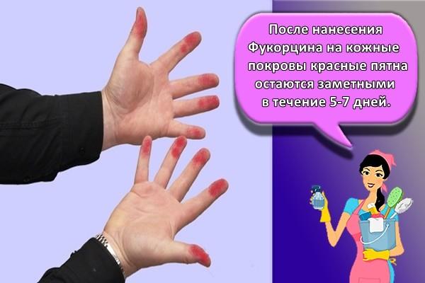 После нанесения Фукорцина на кожные покровы красные пятна остаются заметными в течение 5-7 дней.