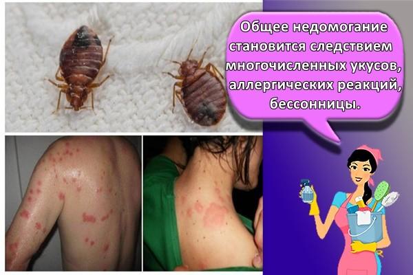 Общее недомогание становится следствием многочисленных укусов, аллергических реакций, бессонницы.