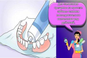Инструкция, как и чем в домашних условиях можно склеить зубной протез